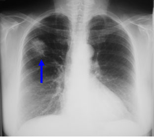 Figure 7: An abnormal Chest X-Ray showing a cancer in the patient's right lung (blue arrow)